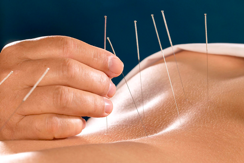 Low-Back-Pain-Acupuncture - Charlotte Chiropractor